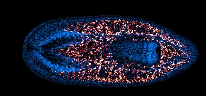 The neoblasts (pink) of a planarian.